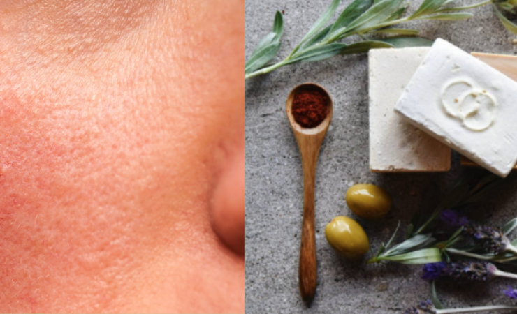 Rosacea Management: Skincare and Lifestyle Tips
